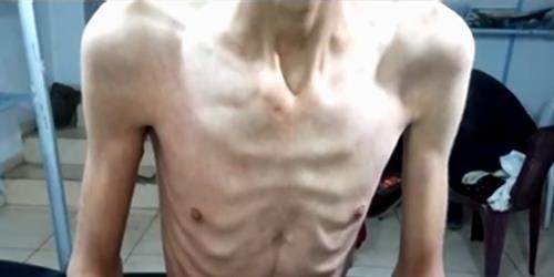 surya - حکایت تلخ مردم سوریه / منطقه تحت محاصره مضایا با بحران گرسنگی مواجه است