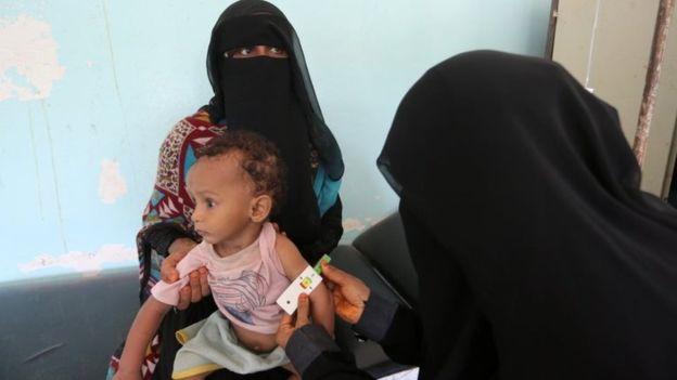 yaman 1 - سازمان بهداشت جهانی از شیوع وبا در یمن خبر داد